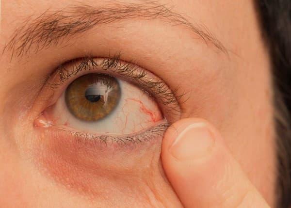 จอประสาทตาลอก (Retina Detachment) :  อาการ สาเหตุ การรักษา