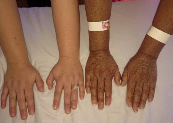 โรคแอดดิสัน (Addison's Disease) : อาการ สาเหตุ การรักษา