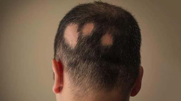 โรคผมร่วงเป็นหย่อม (Alopecia Areata) : อาการ สาเหตุ การรักษา