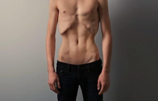 โรคคลั่งผอม (Anorexia Nervosa)