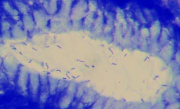 เชื้อเอชไพโลไร (H. Pylori) : อาการ สาเหตุ การรักษา