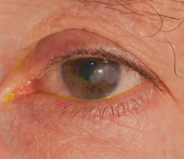 กระจกตาอักเสบ (Keratitis) : อาการ สาเหตุ การรักษา