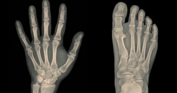 โรคกระดูกบาง (Osteopenia) : สาเหตุ อาการ การรักษา