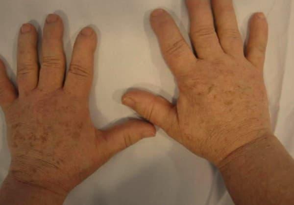 อะโครเมกาลี (Acromegaly): อาการ สาเหตุ การรักษา