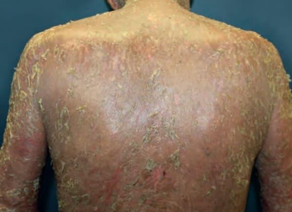 โรคเพมฟิกอยด์ (Pemphigoid) : อาการ สาเหตุ การรักษา