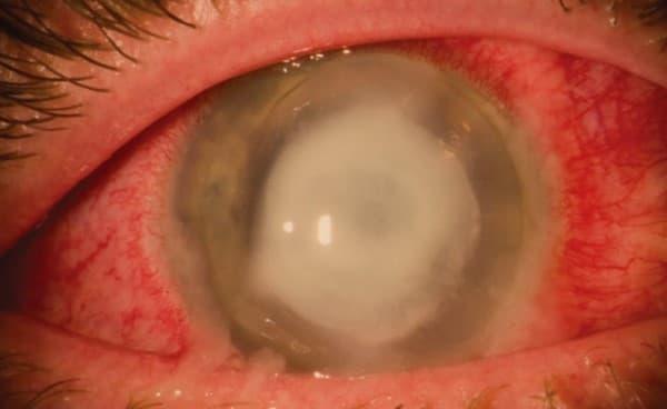 แผลที่กระจกตา (Corneal Ulcer) : อาการ สาเหตุ การรักษา