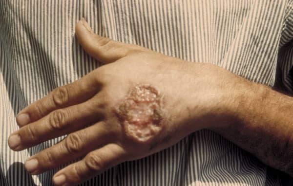 โรคลิชมาเนีย (Leishmaniasis) : อาการ สาเหตุ การรักษา:
