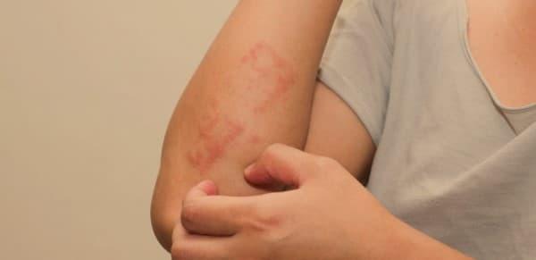 ไลเคน พลานัส (Lichen Planus) : อาการ สาเหตุ การรักษา