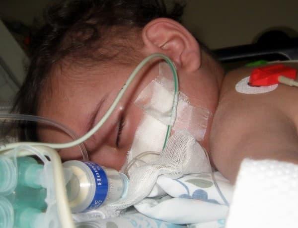 โรคติดเชื้อนิวโมคอคคัส (Pneumococcal Disease) : อาการ สาเหตุ การรักษา