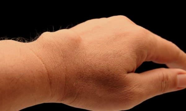ก้อนถุงน้ำที่ข้อมือ (Ganglion Cyst) : อาการ สาเหตุ การรักษา
